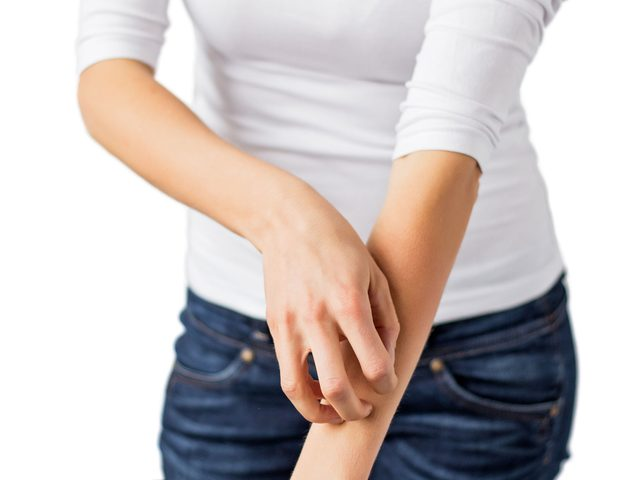 Woman itching her arm