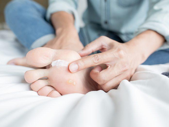 man applying cream for athletes foot treatment