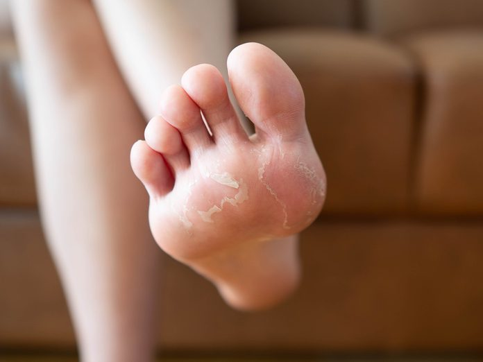 Close up of peeling and cracked foot. Causes of peeling foot included fungal infection (athlete's foot), dermatitis (eczema), sunburn, dry skin, dehydration or sweaty feet. Health care concept.