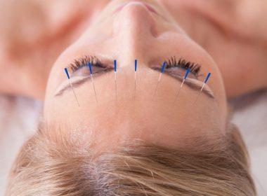 accupuncture_0