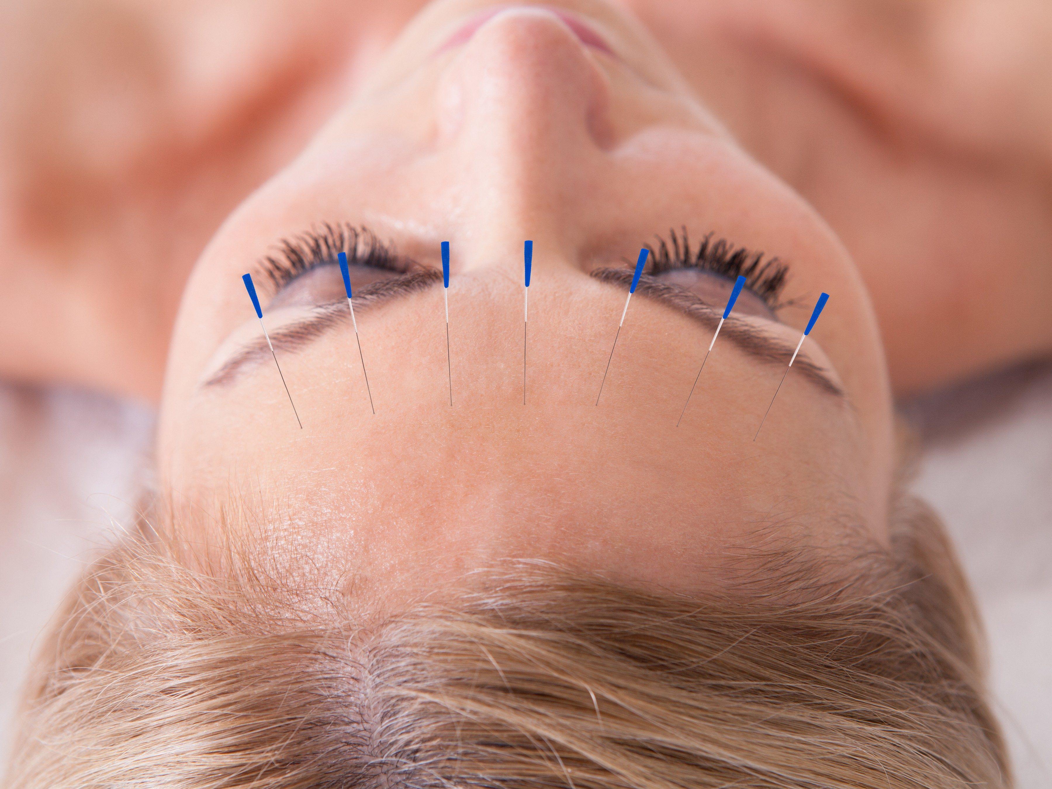 4. Acupuncture