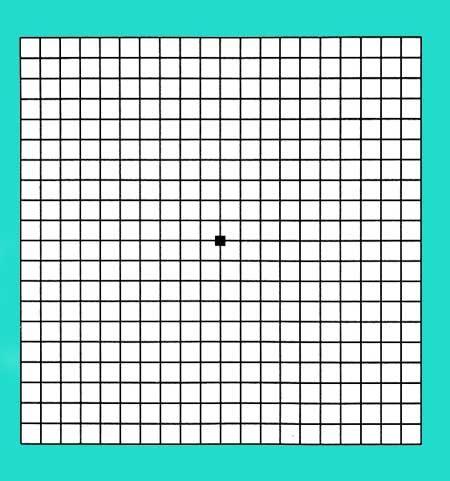 The Amsler Grid