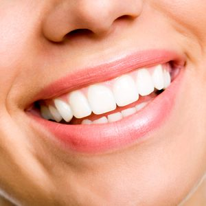 10. Your Teeth Shift with Age, Even if You Had Braces as a Teen
