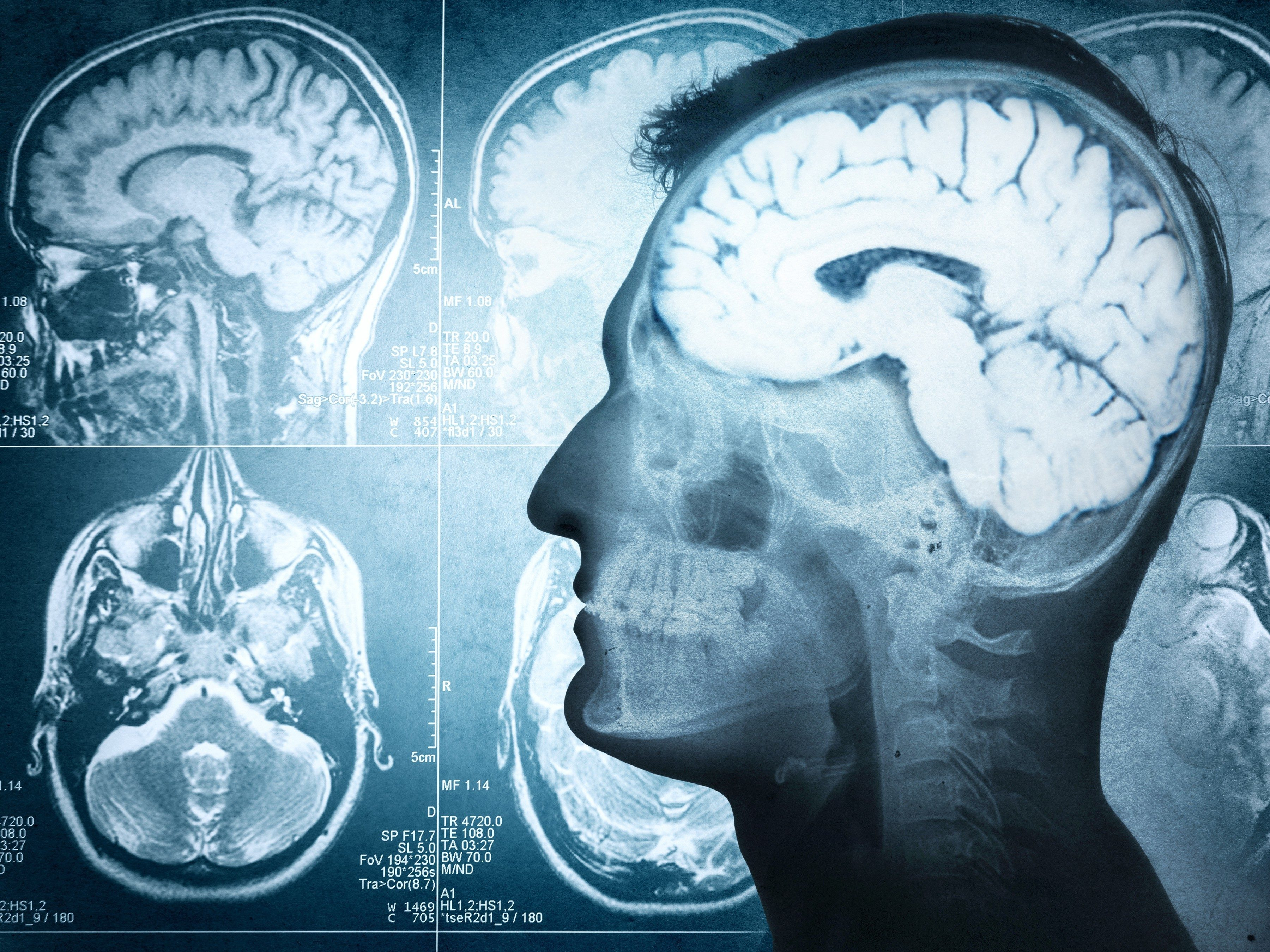 14. Stress shrinks your brain.