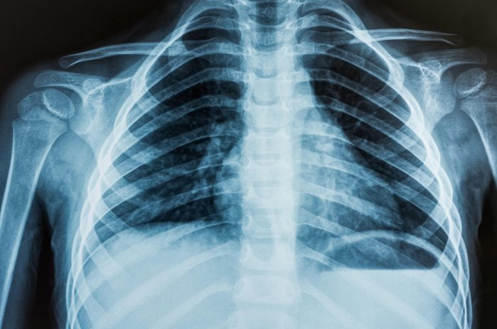 X-ray of person's lungs