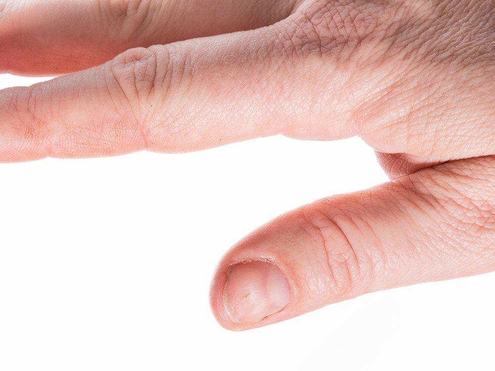 Spoon nails disorder