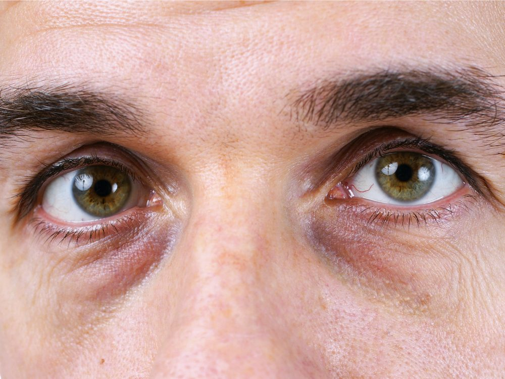 Eye bags and puffiness could be signs of disease