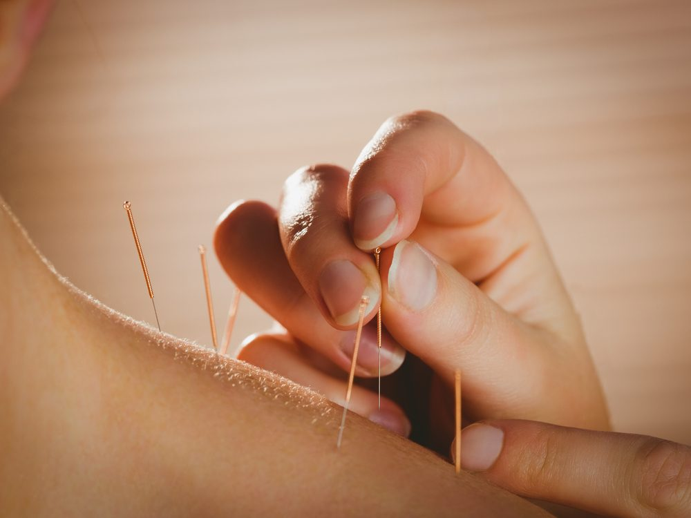 One of the best ways to quit smoking is acupuncture
