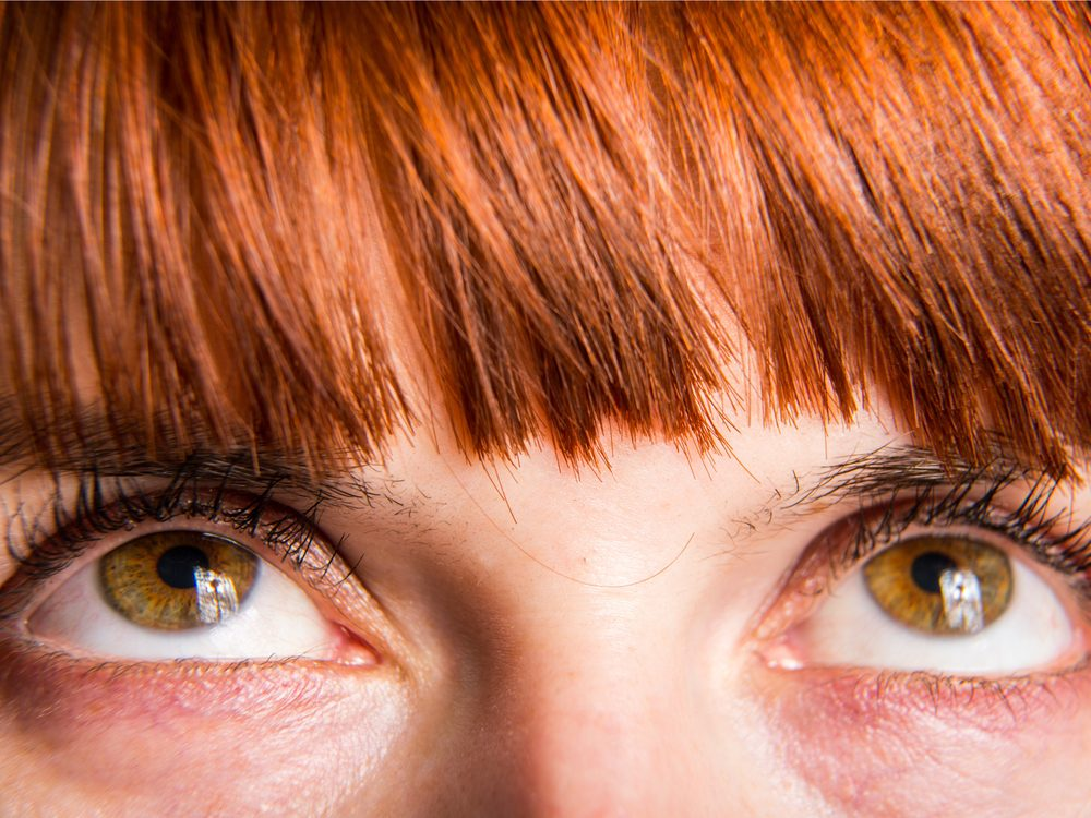 Yellow spots on eyelids could be signs of disease