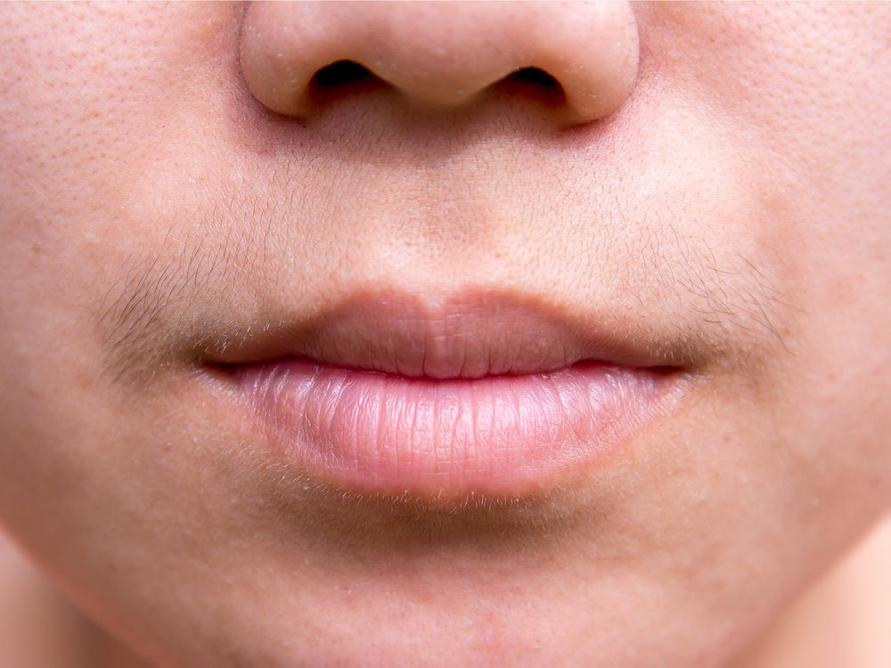 Excess facial hair could be a sign of disease