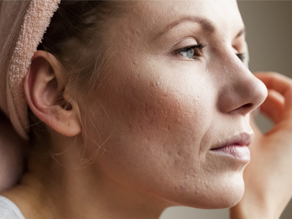 Rashes and blotches may be signs of disease