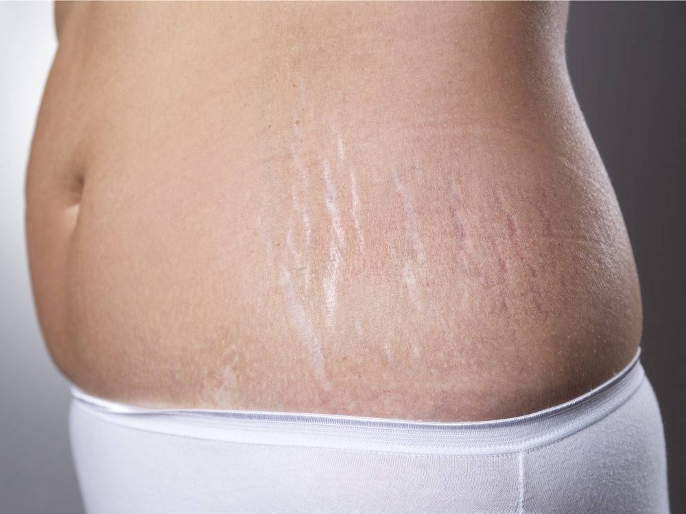Dermatologists wish you would stop spending money on stretch mark creams
