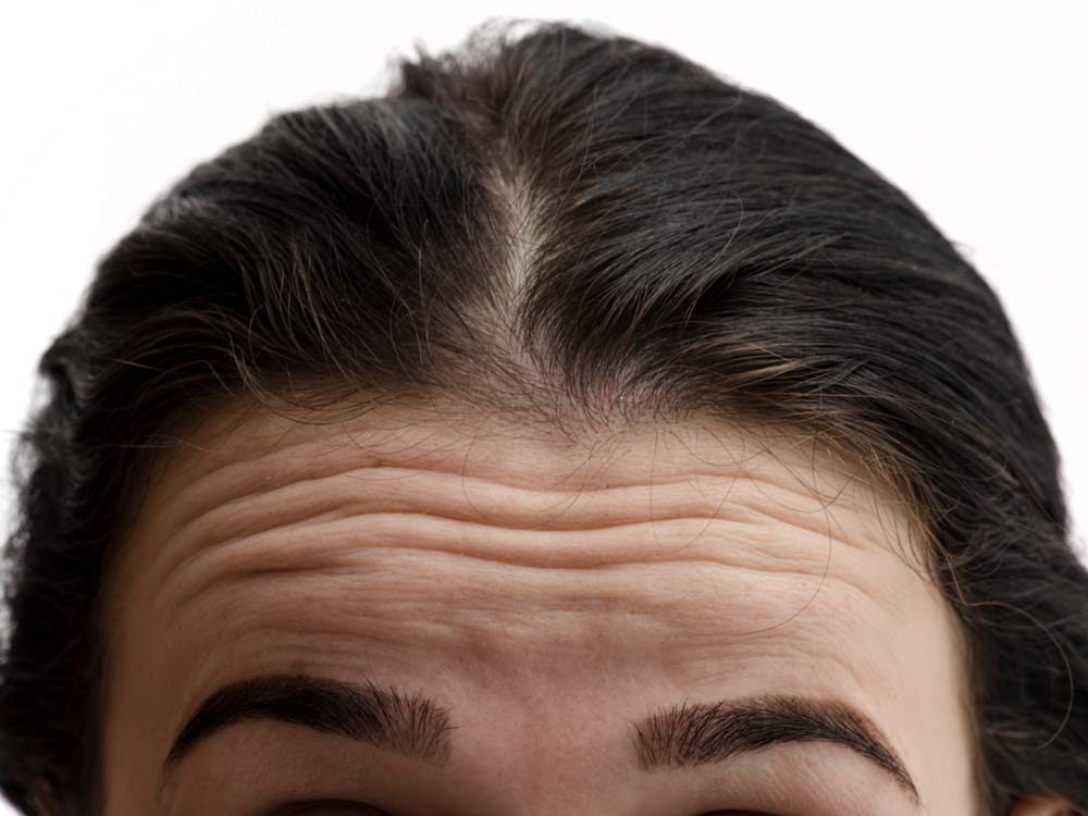 First wrinkles on forehead