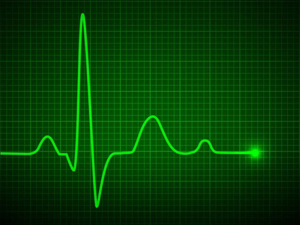 Luminous pulse graphic