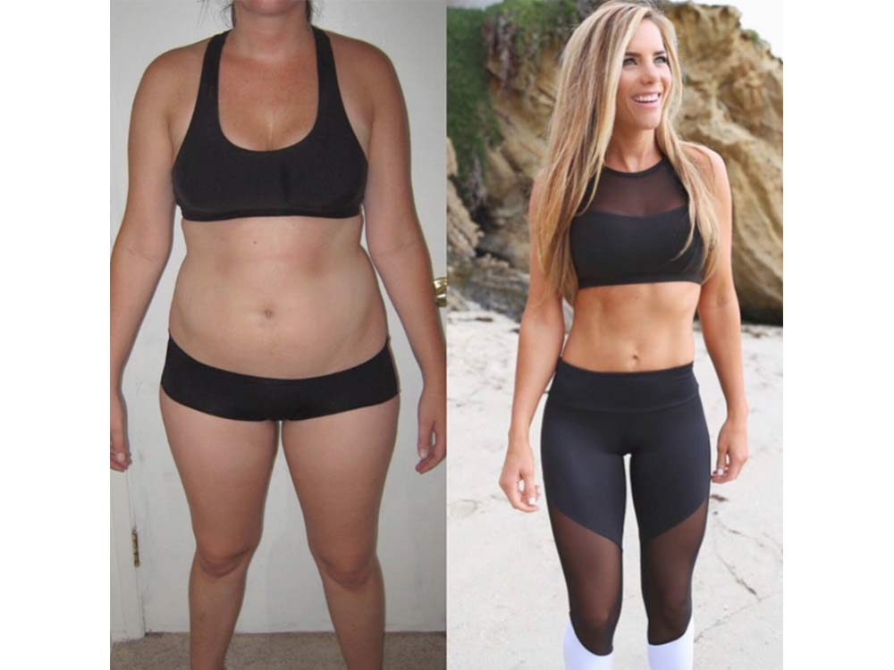 Katie Dunlop before and after