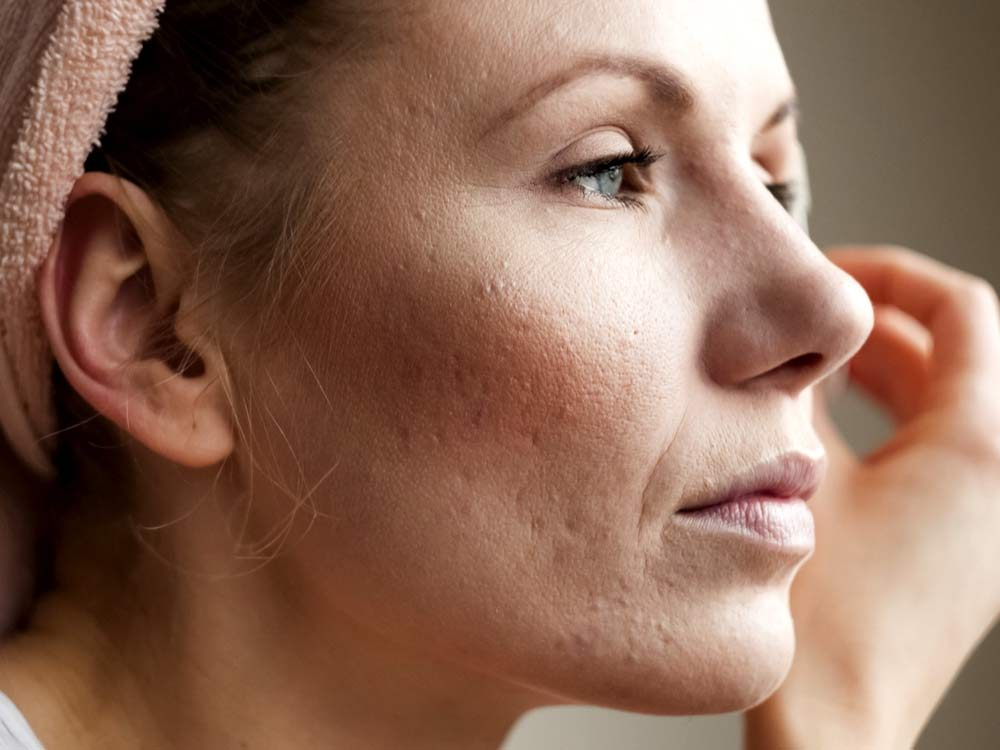 Woman's cheek with acne