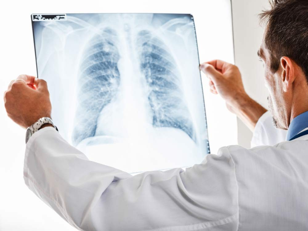 Doctor looking at lung x-rays