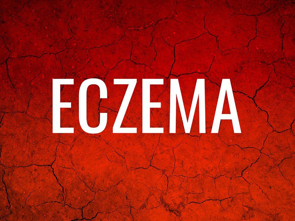 Skin condition: Eczema