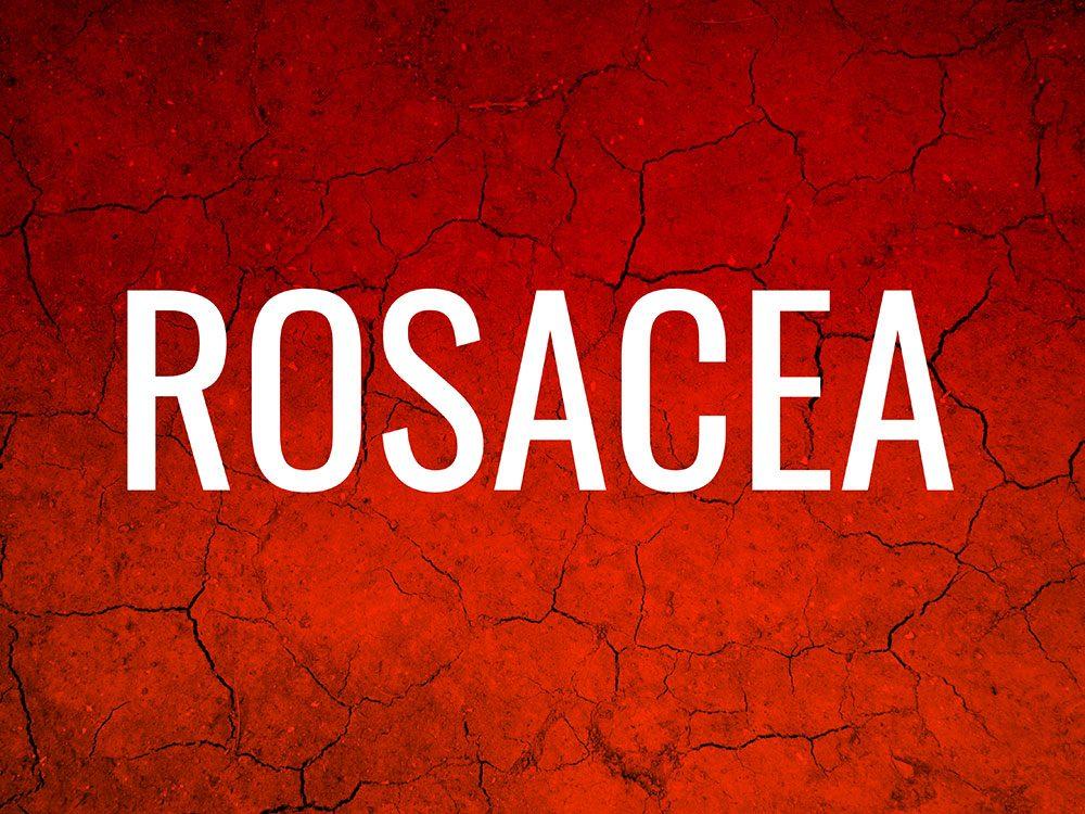 Skin condition: Rosacea