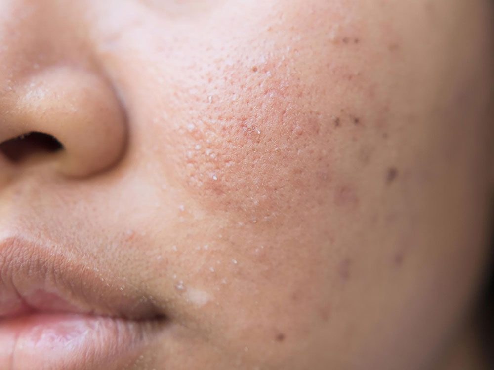 Acne on woman's face