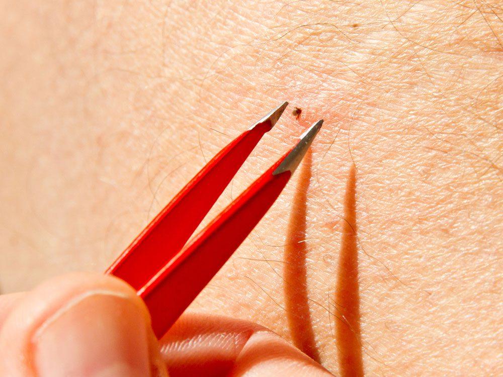 Removing tick with tweezer