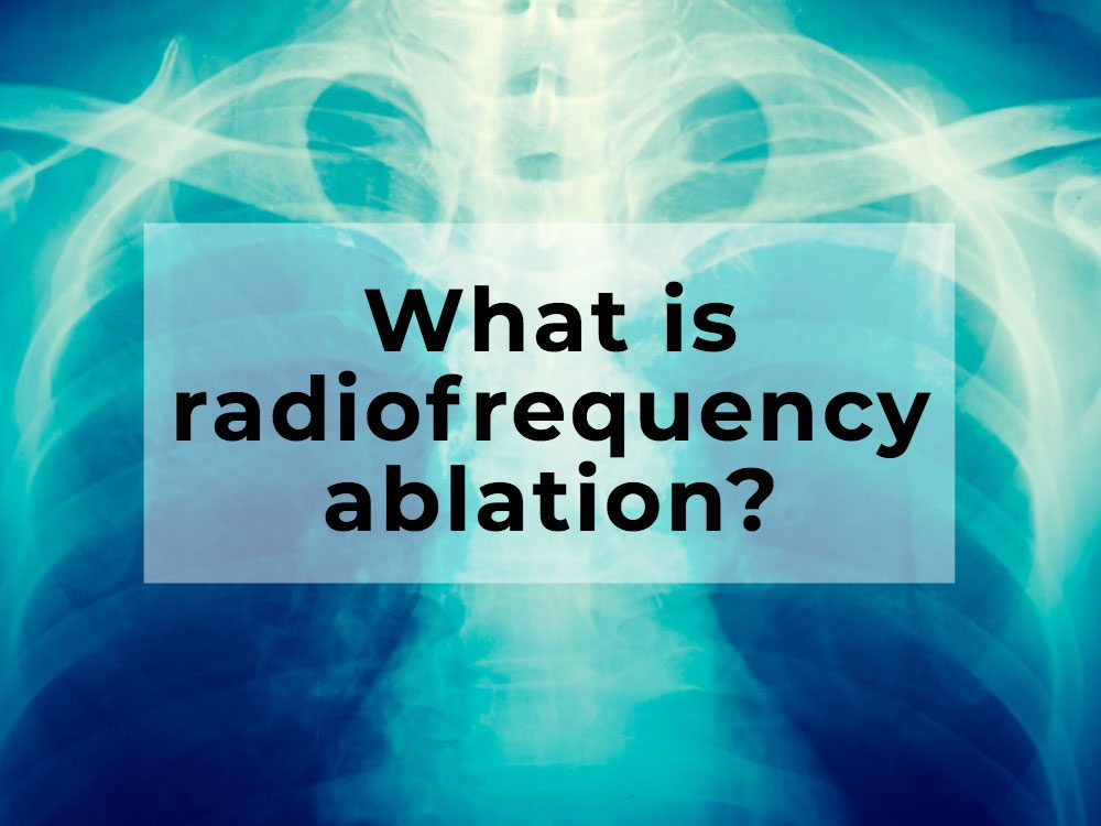 What is radiofrequency ablation?