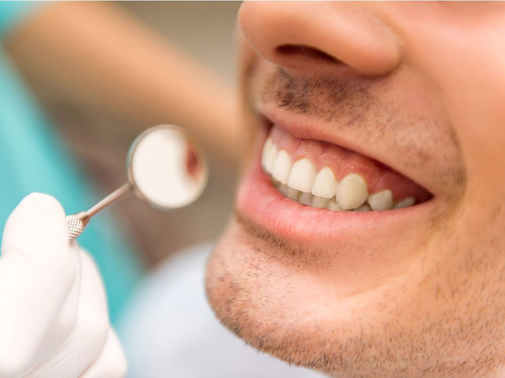 Man smiling in dental office