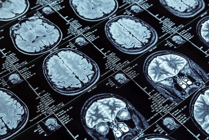 Phthalates could stunt brain growth