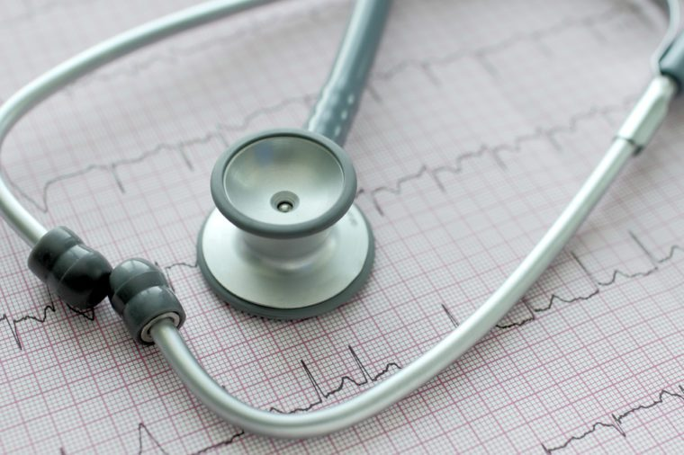 Heartbeat line (EKG)