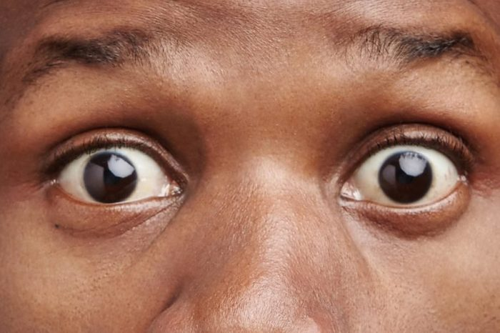 Astonished dark skinned male frowns face, looks with bugged eyes, being surprised to hear unexpected news. Shocked young African American male with specific appearance, expresses great amazement