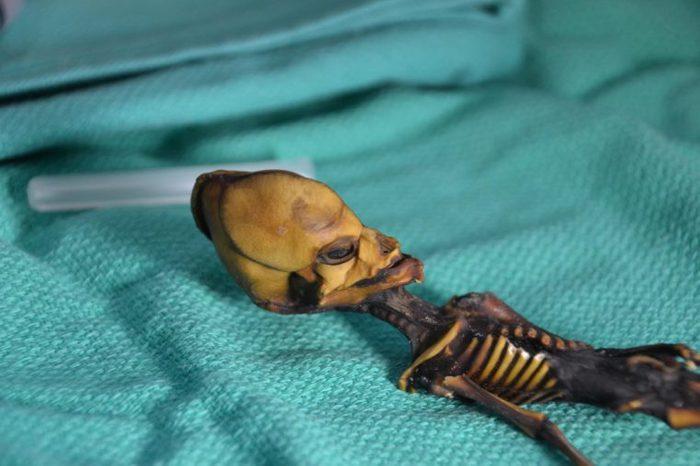 Tiny Human Skeleton