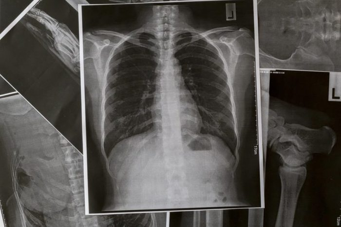 X-Ray Image Of Human Chest for a medical diagnosis.Chest and lungs Xray photo