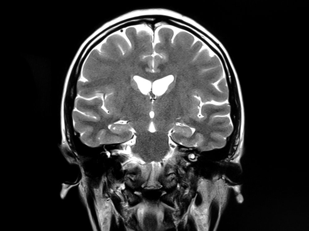 MRI scan of human brain