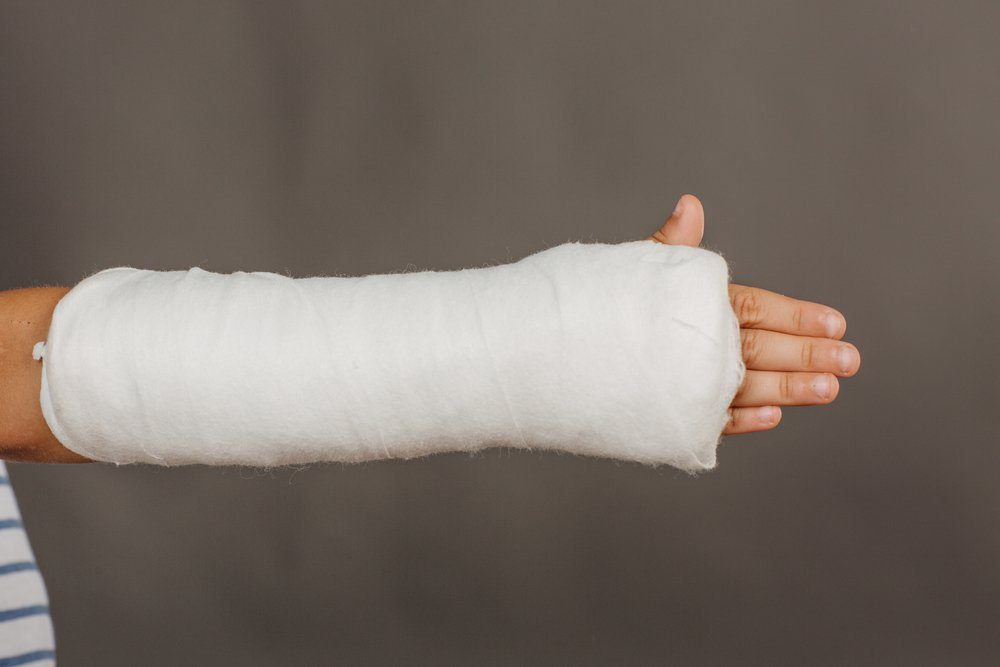 Close-up of a broken arm in a cast on grey background