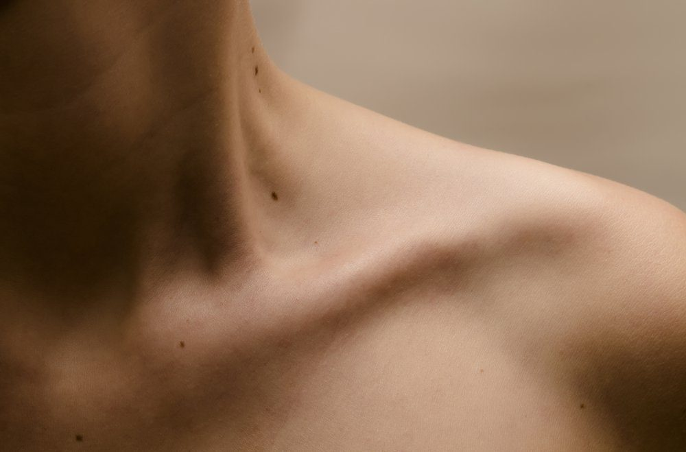 Clavicle Women with moles on the skin