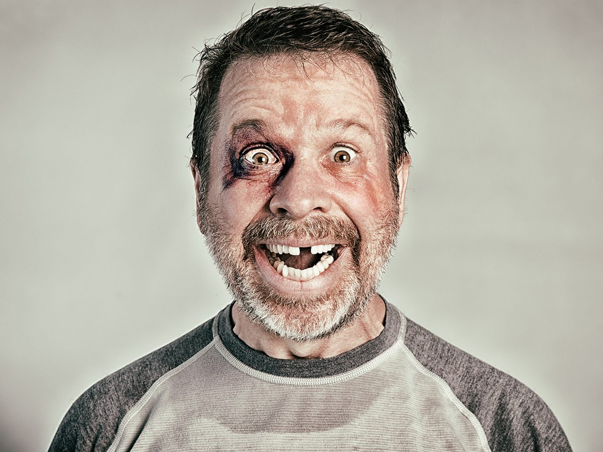 Best Reader's Digest jokes of all time - man with black eye