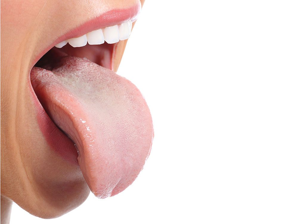 How to get rid of hiccups - stick out your tongue