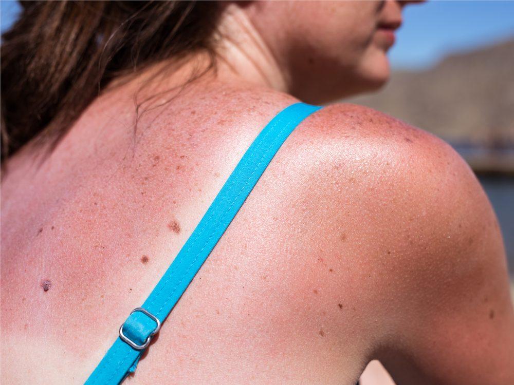 Sunburn on woman