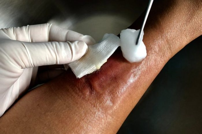 Dressing wound with infected wound diabetic foot disease and cellulitis inflammation. Medical and healthcare concept.