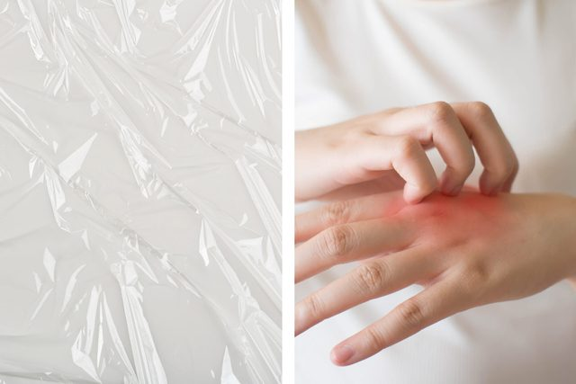 Treat psoriasis with plastic wrap