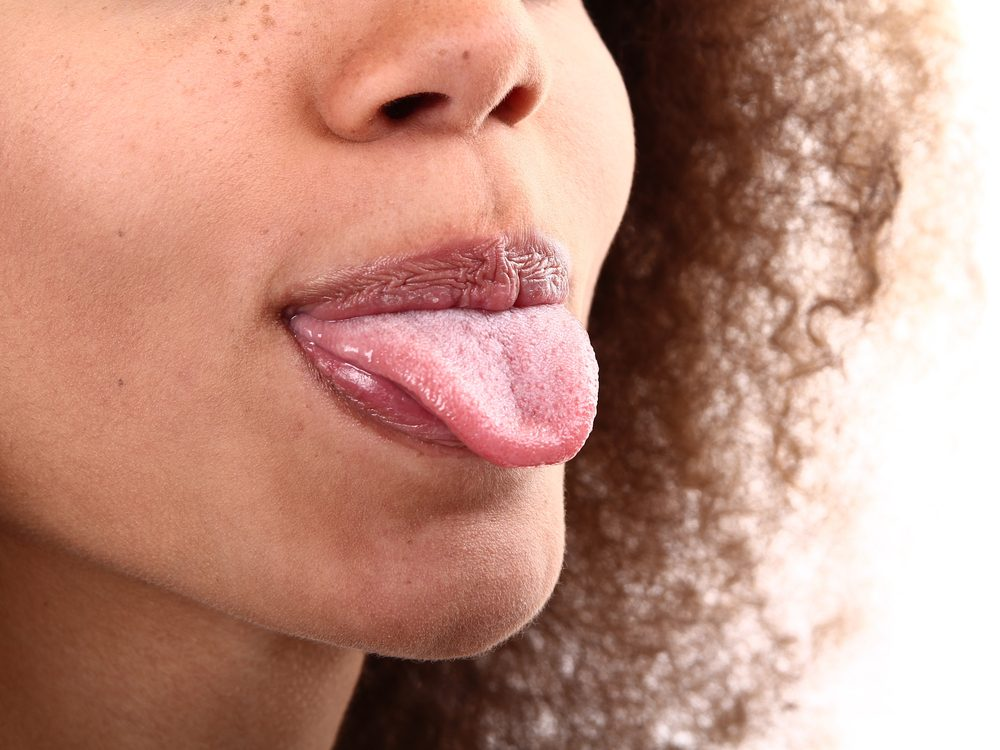 If You Have Bumps on Your Tongue, Here's What They Could Mean