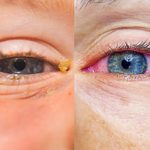 Is It Allergies or Pink Eye? Here's How to Tell the Difference