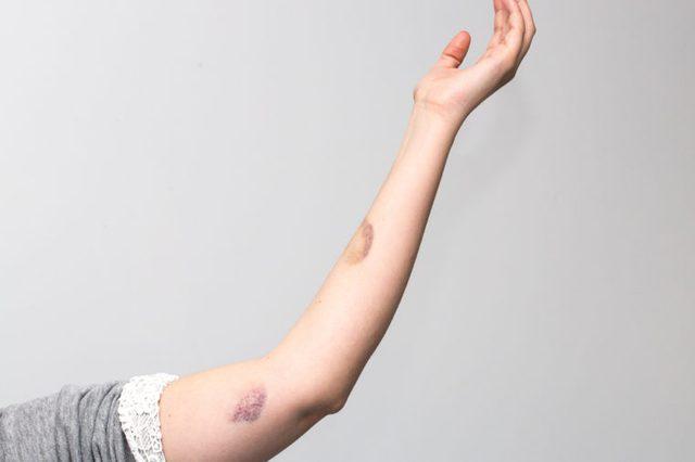 Woman violence, bruises on arm