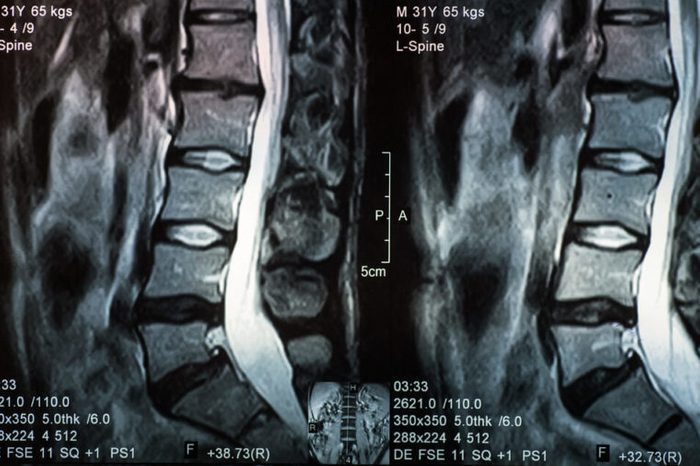 Magnetic resonance image of human spine with lordosis, disc herniation and spondylolisthesis l5-s1