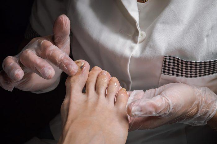 toe doctor