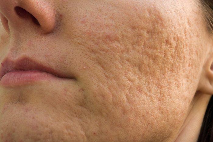 facial acne