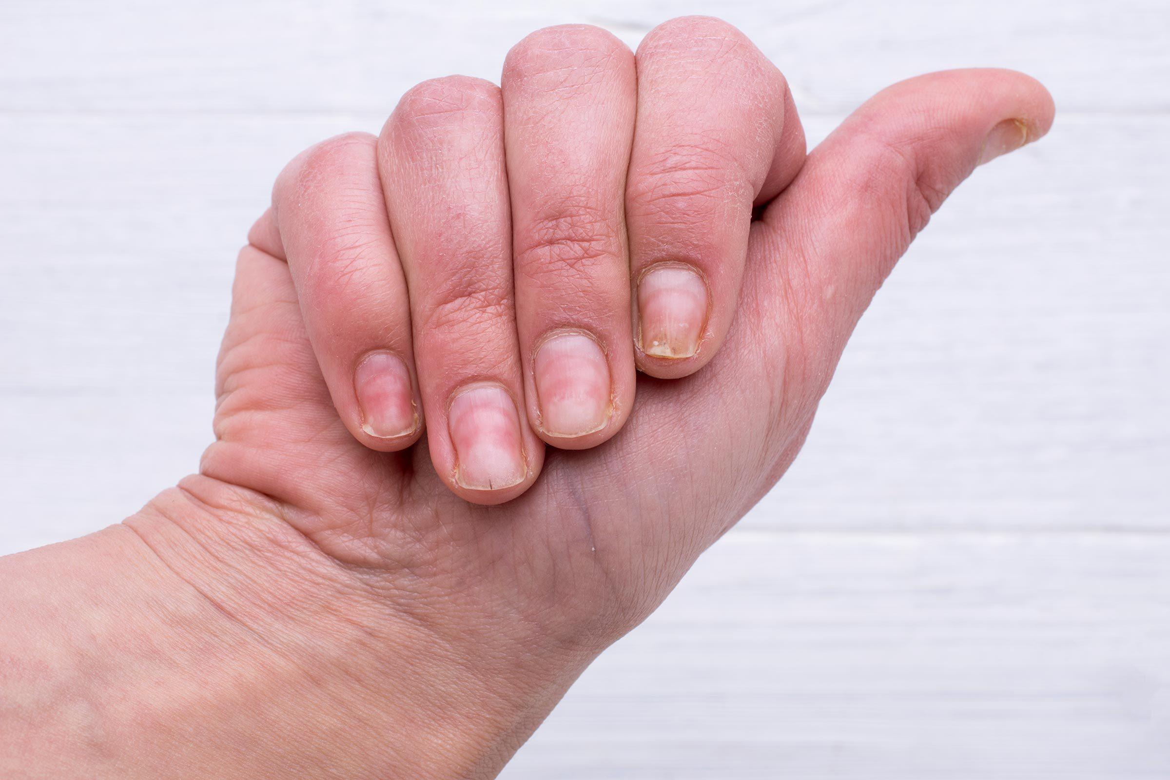 nail pitting dent