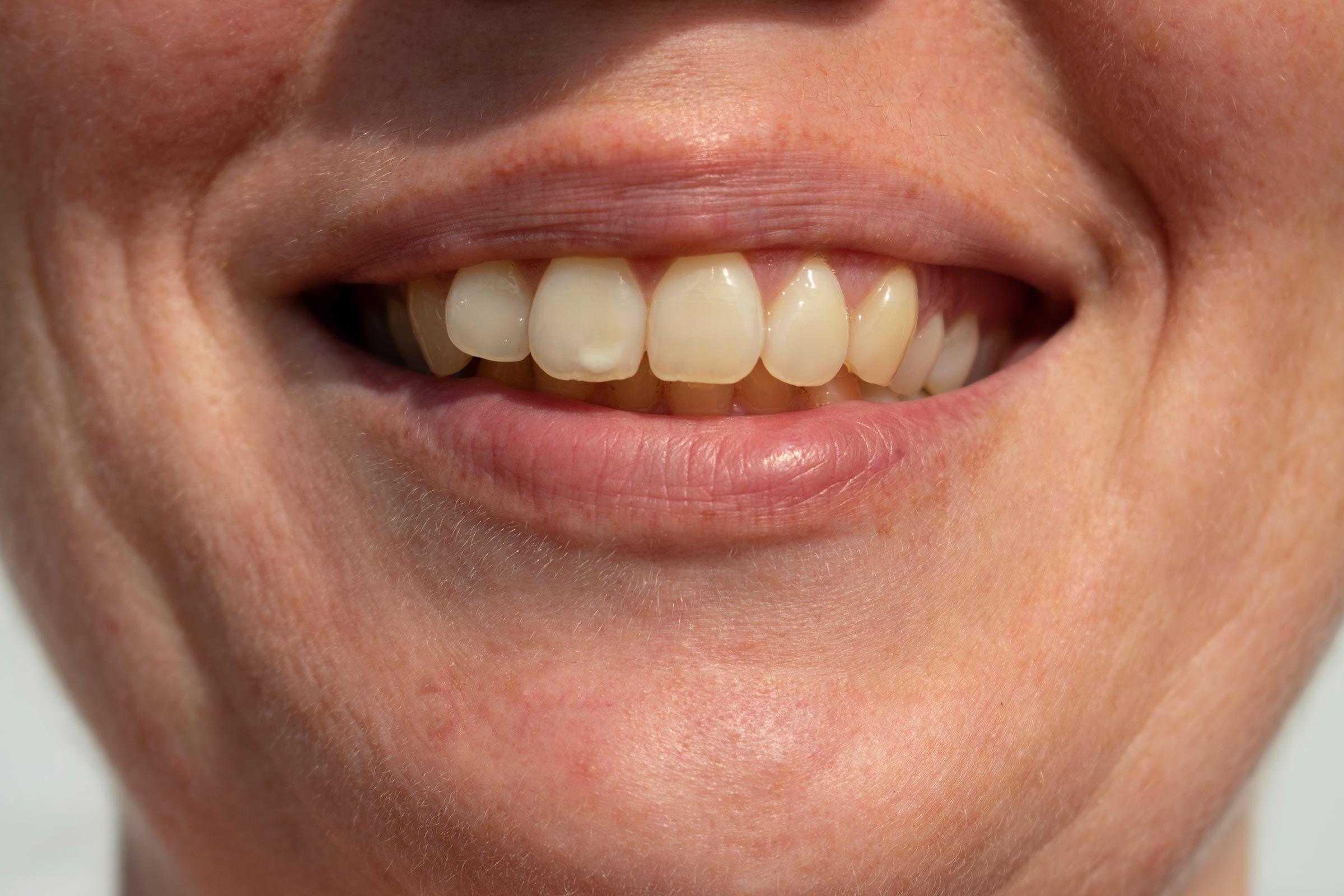 teeth spots