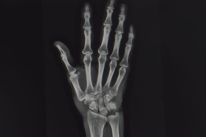 anteroposterior radiograph of a hand showing normal bones and joints. no sign of inflammation, arthritis or de quervain.