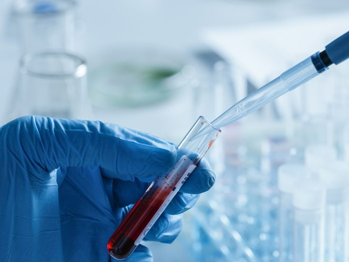 Medical mystery - blood tests